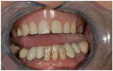http://aristocratdent.ru/images/protezirovanie_na_implantah_do_implanty_miss.jpg