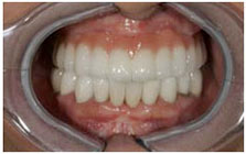 http://aristocratdent.ru/images/protezirovanie_na_implantah_posle_implanty_miss.jpg