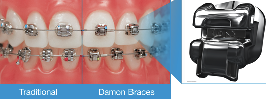 Braces_DAMON