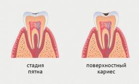 Поверхностный кариес. Стоматология «АристократЪ-Дент»